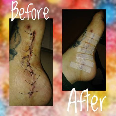 Stitches 2.22.17 before and after